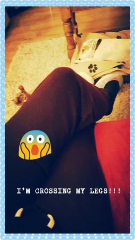 legs living with hip dysplasia.jpg